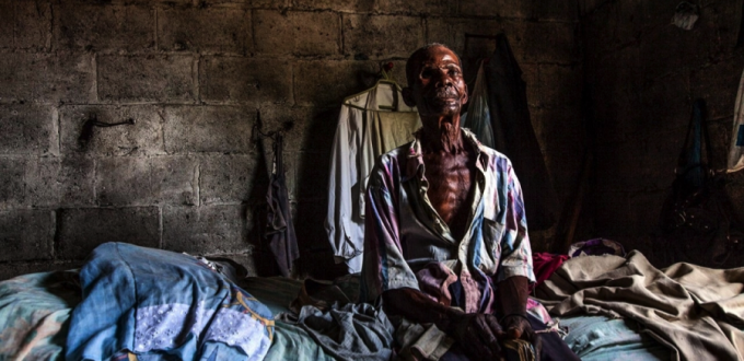 Andrés Michel_Boycott Domino Sugar. The DR is spending millions so you'd let Michel die like this. Andrés Michel, 75, lost an eye cultivating cane meant for the sugar company Central Romana. Michel still works the fields, but for a different company. Photo Source: Aljazeera